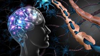 RES aneb Roztroušená skleróza