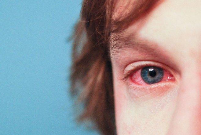 Podzimní alergie